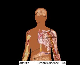 330px-stem_cell_treatments-svg